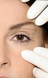 Cirurgia das pálpebras - blefaroplastia